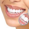 Отбеливание зубов от профи: клиника «Один к одному» ждет вас!