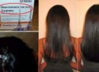 Зачем нужна никотиновая кислота для волос?