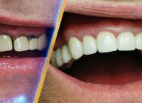 От чего зависит цена коронки на зубы из циркония?